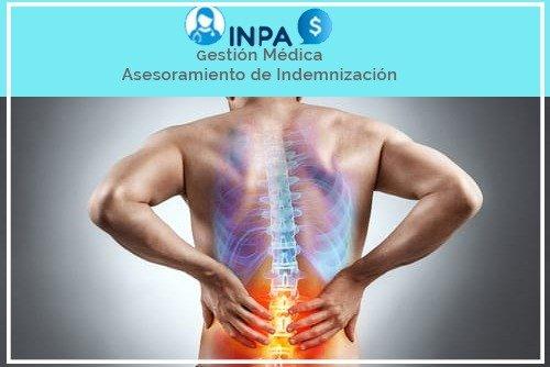indemnizacion por lesiones de espalda