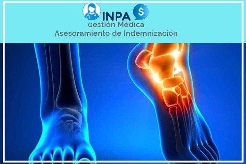 reclamación por lesión en el pie
