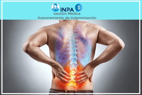 indemnización por lesión de espalda